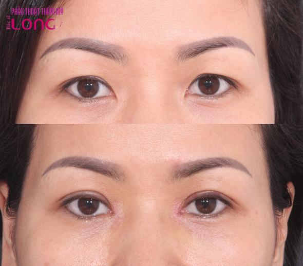 Lấy bọng mỡ mí mắt nội soi phương pháp giúp trẻ hoá mắt