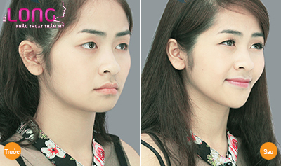 tham-my-don-cam-co-anh-huong-gi-khong-1