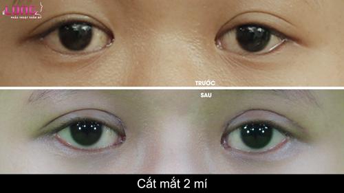 cat-mat-2-mi-co-anh-huong-den-thi-luc-cua-mat-khong-1