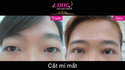cat-mat-2-mi-co-anh-huong-den-thi-luc-cua-mat-khong