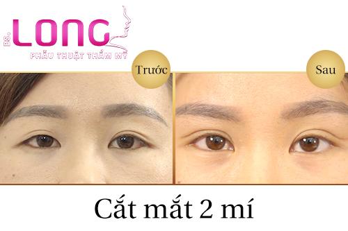 cat-mat-2-mi-han-quoc-tu-nhien-tai-tmv-bs-long-1