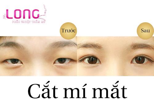 cat-mat-2-mi-co-nhung-uu-diem-gi-dac-biet-1