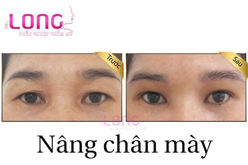 nang-chan-may-co-xoa-nep-nhan-mi-mat-khong-1