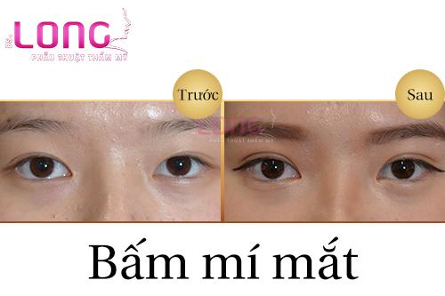 bam-mat-2-mi-co-an-toan-khong