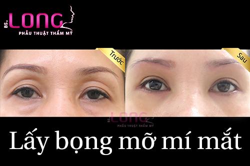 lay-bong-mo-mat-co-xoa-duoc-bong-mo-mi-duoi-khong-1