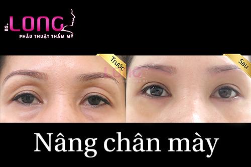 nang-chan-may-bang-chi-bac-si-long-co-uu-diem-gi-1