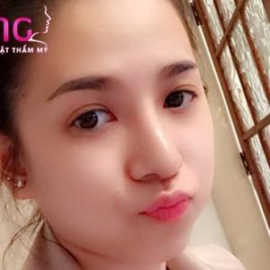 bam-mat-2-mi-xong-cham-soc-nhu-the-nao