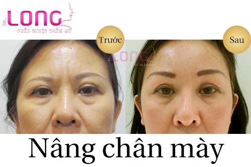 nang-chan-may-dep-co-vinh-vien-duoc-khong-1