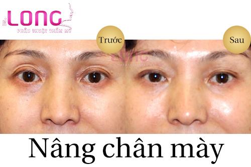 nang-chan-may-giup-xoa-nep-nhan-vung-mat-1