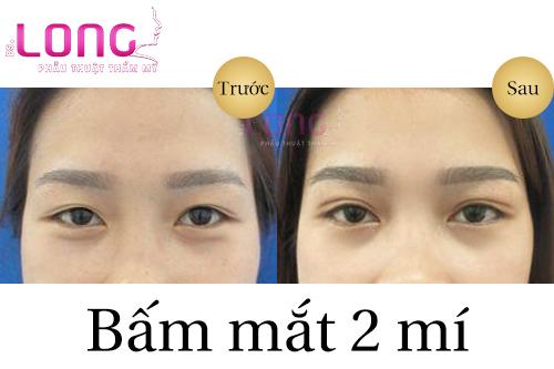 bam-mi-mat-bao-lau-thi-lanh-1