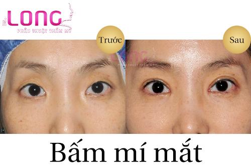 bam-mi-mat-co-anh-huong-thi-luc-khong-1