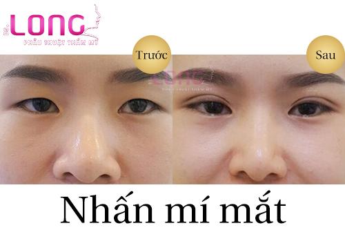 tao-mat-2-mi-khong-phau-thuat-bang-nhan-mi-1