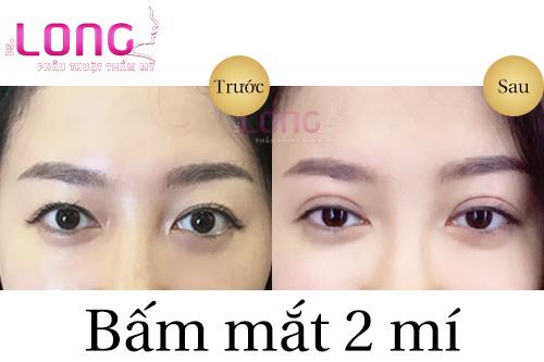 bam-mat-2-mi-khong-phau-thuat-co-dat-khong-1