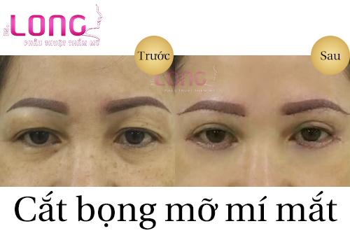 cat-bong-mo-mi-duoi-co-de-lai-seo-khong-1