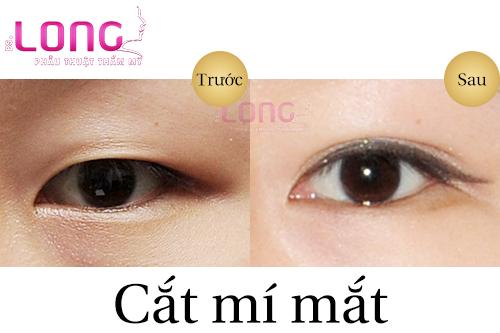 quy-trinh-cat-mat-2-mi-plasma-thuc-hien-nhu-the-nao-2