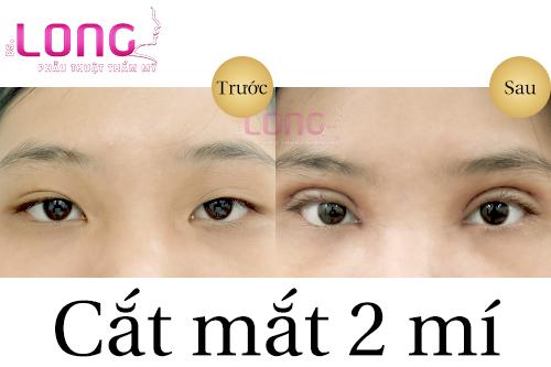 sau-khi-cat-mi-mat-khong-deu-lieu-co-sua-lai-duoc-khong-1