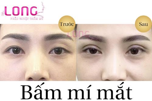 bam-mat-2-mi-co-anh-huong-den-mat-khong-1