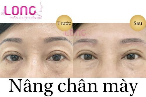 quy-trinh-phau-thuat-nang-chan-may-nhu-the-nao-1