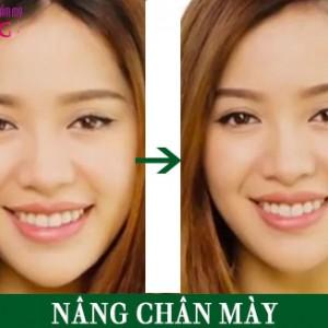 nang-chan-may-noi-soi-o-dau-dep-1