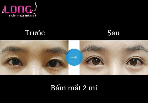 bam-mat-2-mi-han-quoc-la-gi-1