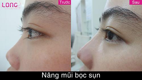 nang-mui-boc-sun-bao-lau-se-cao-va-dep