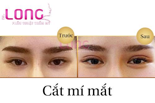 nguoi-mi-lot-co-cat-mat-2-mi-duoc-khong-1