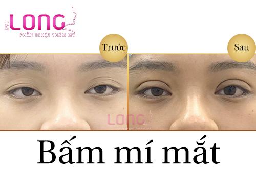 bam-mi-mat-xong-co-bi-sung-bam-khong-1