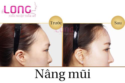 nang-mui-chinh-hinh-co-dau-khong-1