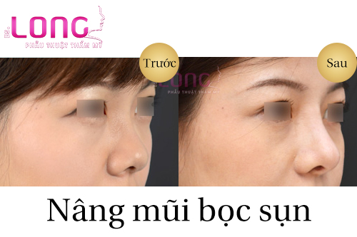 phau-thuat-nang-mui-boc-sun-co-dau-khong-2