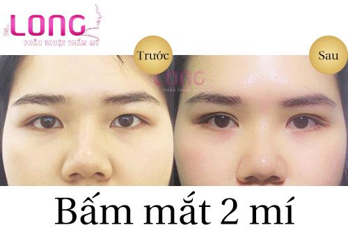 bam-mat-2-mi-xong-cham-soc-nhu-the-nao-1