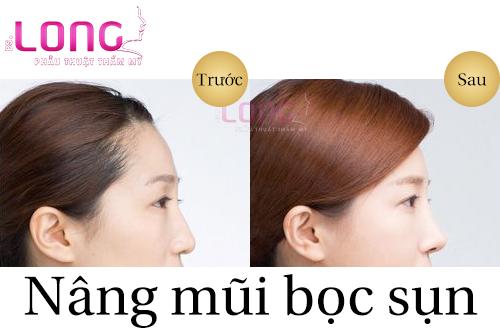 dia-chi-nang-mui-han-quoc-sun-tu-than-khong-dau-1