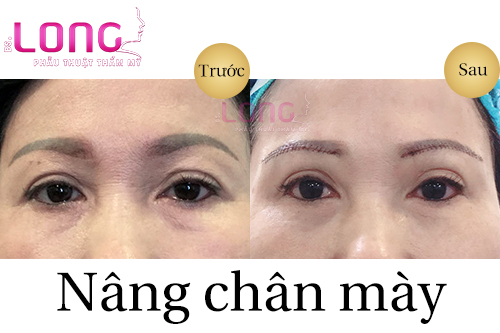 nang-chan-may-giu-duoc-vinh-vien-khong-1