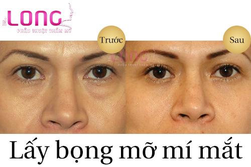 lay-bong-mo-mi-mat-thuc-hien-nhu-the-nao-1