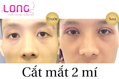 phau-thuat-cat-mat-2-mi-cho-nam-1