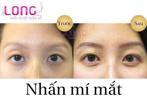nhan-mi-da-diem-xong-co-can-cat-chi-khong-1