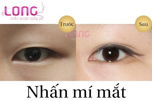 sau-nhan-mi-1-thang-van-bi-sung-co-sao-khong-1