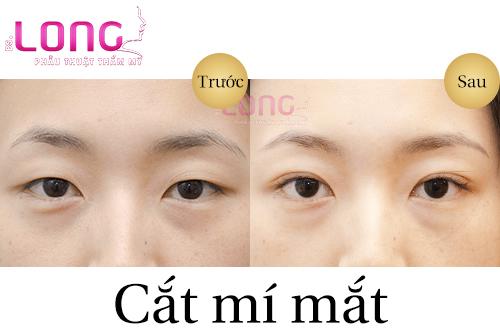 ban-nen-lua-chon-cat-mi-mat-hay-bam-mi-mat-1