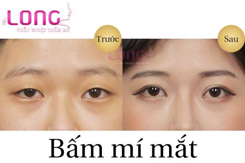 thoi-gian-phuc-hoi-sau-bam-mat-2-mi-tham-my-1