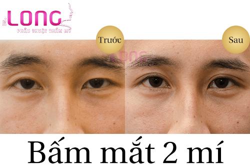 cham-soc-sau-bam-mat-2-mi-dung-cach-va-nhanh-lanh-1
