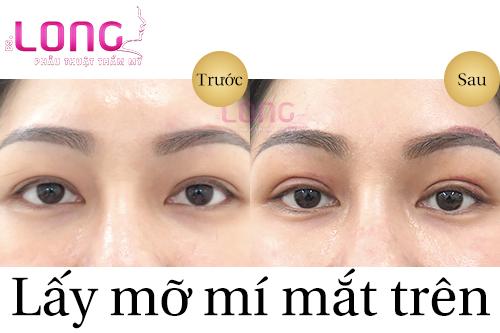 lay-bong-mo-mi-mat-co-phuc-tap-khong-1