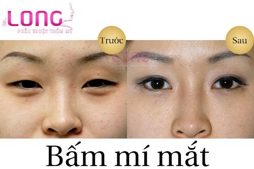 neu-muon-bam-mi-mat-dep-nen-kieng-an-nhung-thuc-pham-sau