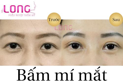 chi-phi-bam-mi-mat-bao-nhieu-va-co-vinh-vien-khong-1