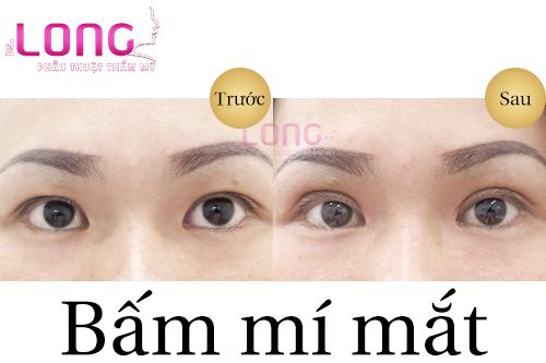 quy-trinh-bam-mat-2-mi-co-phuc-tap-khong-1
